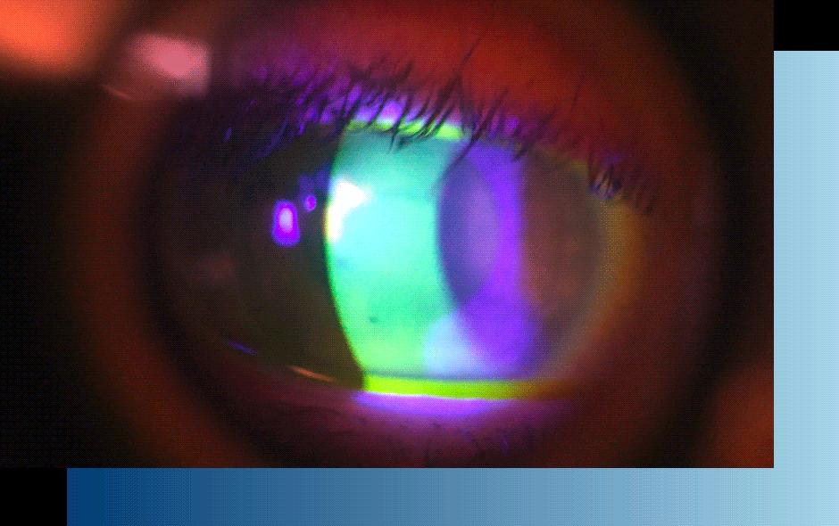 Kuivat silmät – mistä apua?