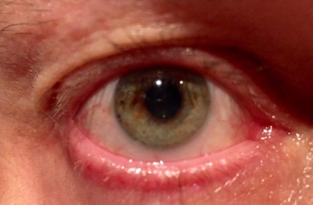 10 ja yksi syytä miksi silmiä ei kannata laserleikkauttaa